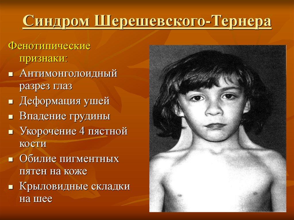 Забеременеть с синдромом шерешевского тернера