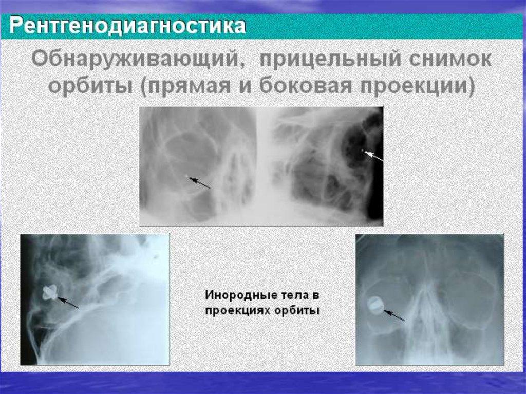 Клиническая классификация и построение диагноза черепно