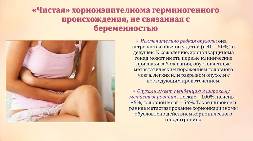 Отеки связанные с беременностью