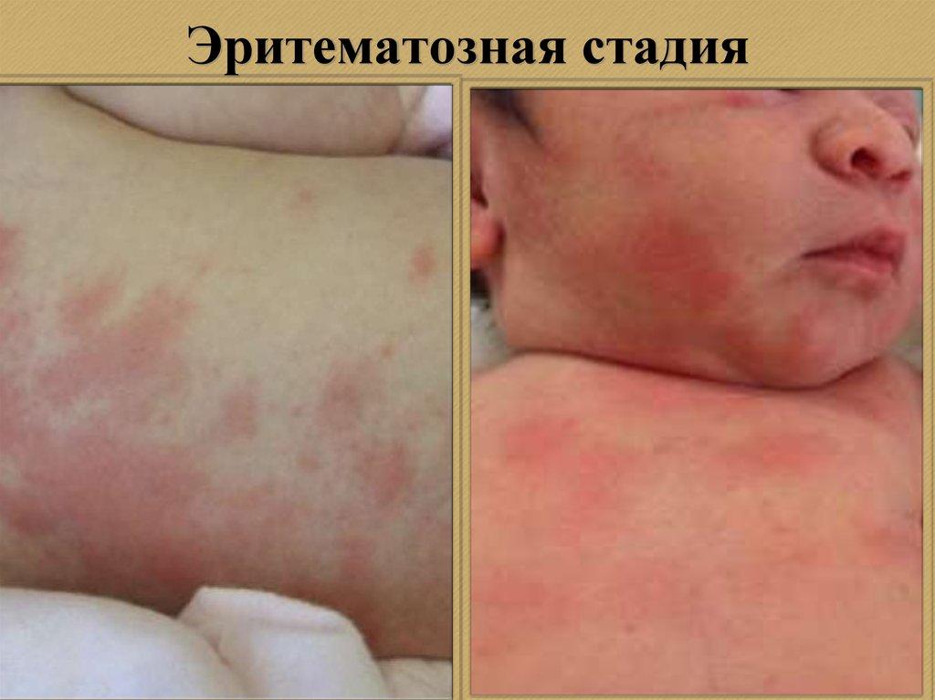 аллергия крапивница чем лечить фото