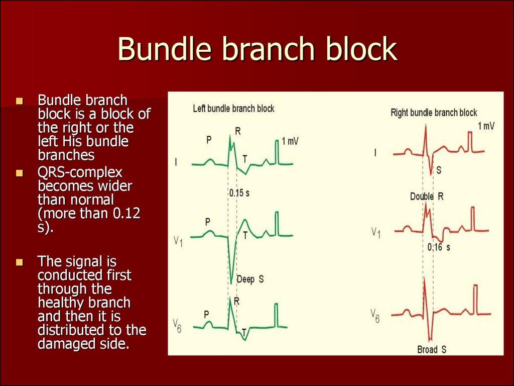 Heart Pathology   Subject 13