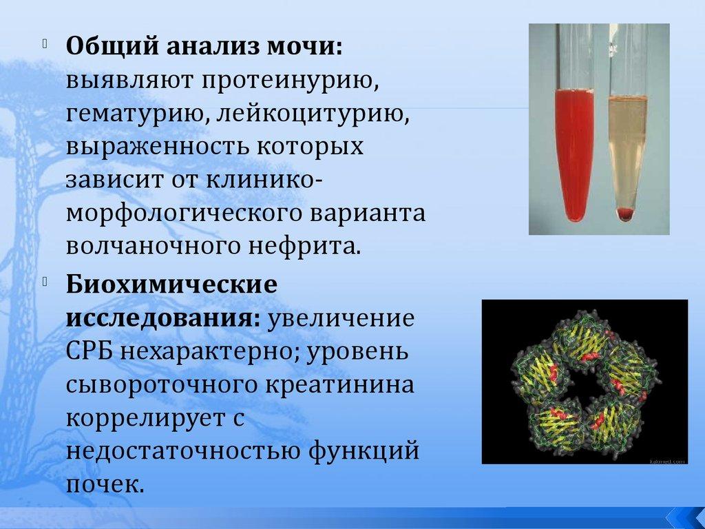 Лимфопения
