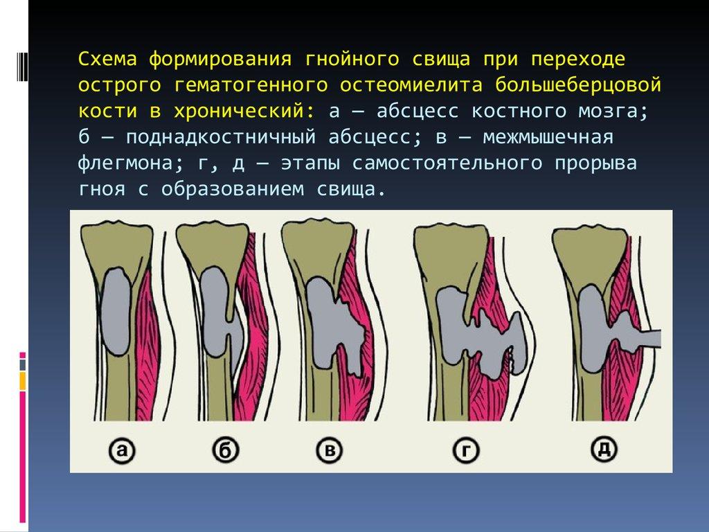 схема лечения остеомиелита