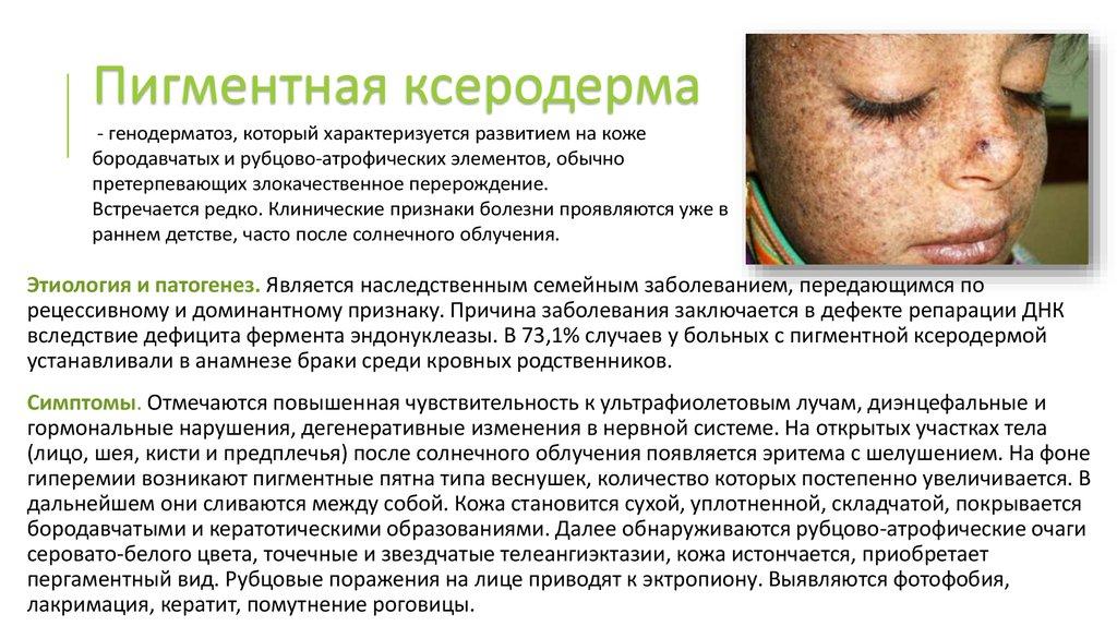 рак кожи причины симптомы фото