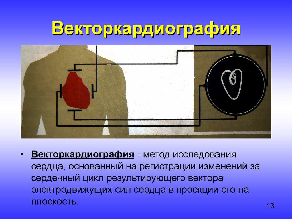 Рентгенокинематография
