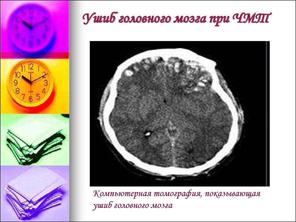 какая грозит статья за сотрясения мозга при нанесении в нетрезвом состоянии