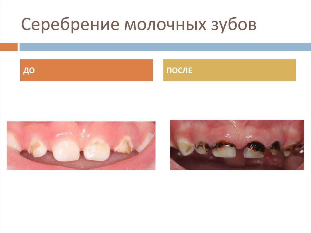 Как убрать черноту с зубов после серебрения