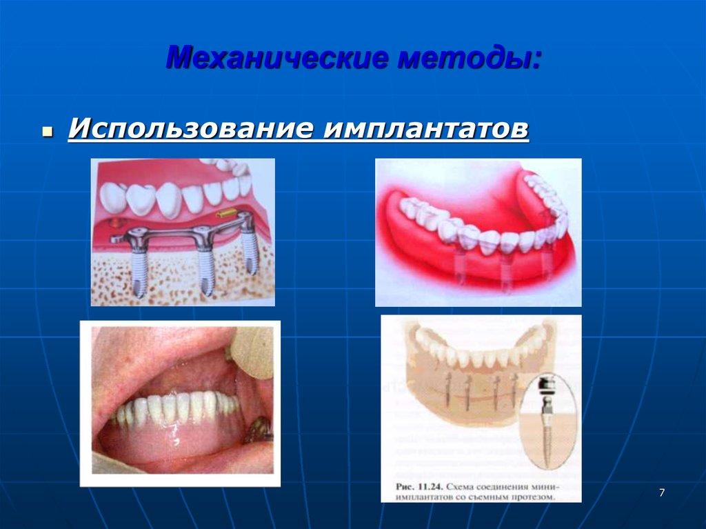Границы базисов протеза при полном отсутствии зубов