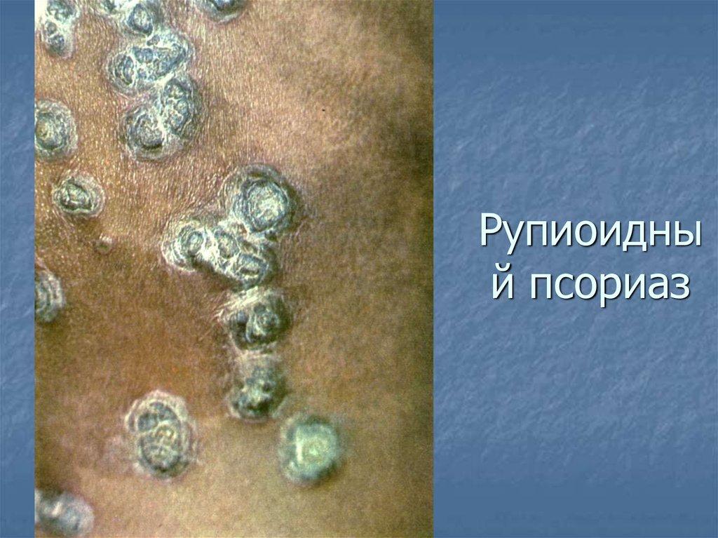Рупиоидный Псориаз Лечение