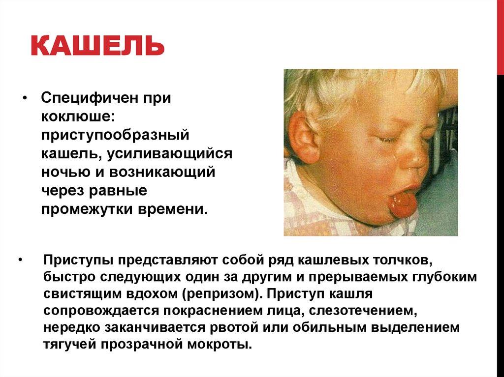 Семиотика поражения органов дыхания у детей - online presentation