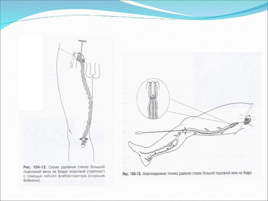 Хирургическое лечение варикоза вен нижних конечностей