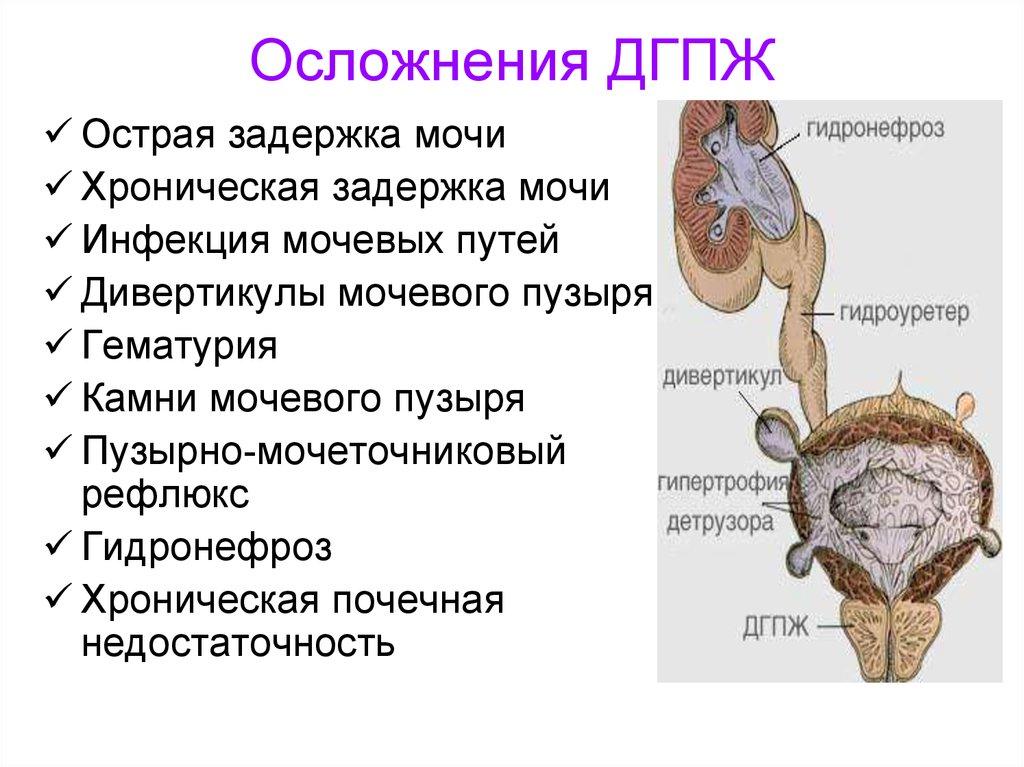 Гиперплазия предстательной железы осложнения