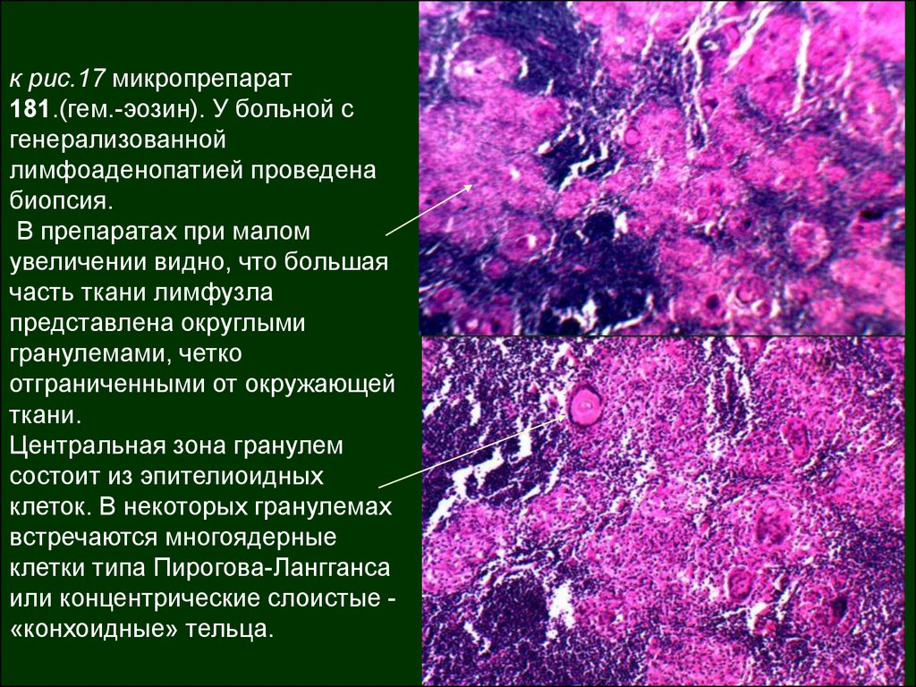 Риносклерома