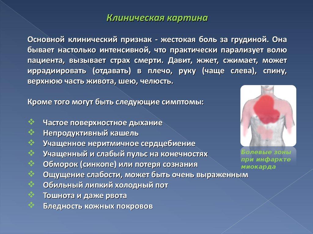 презентация на тему инфаркт