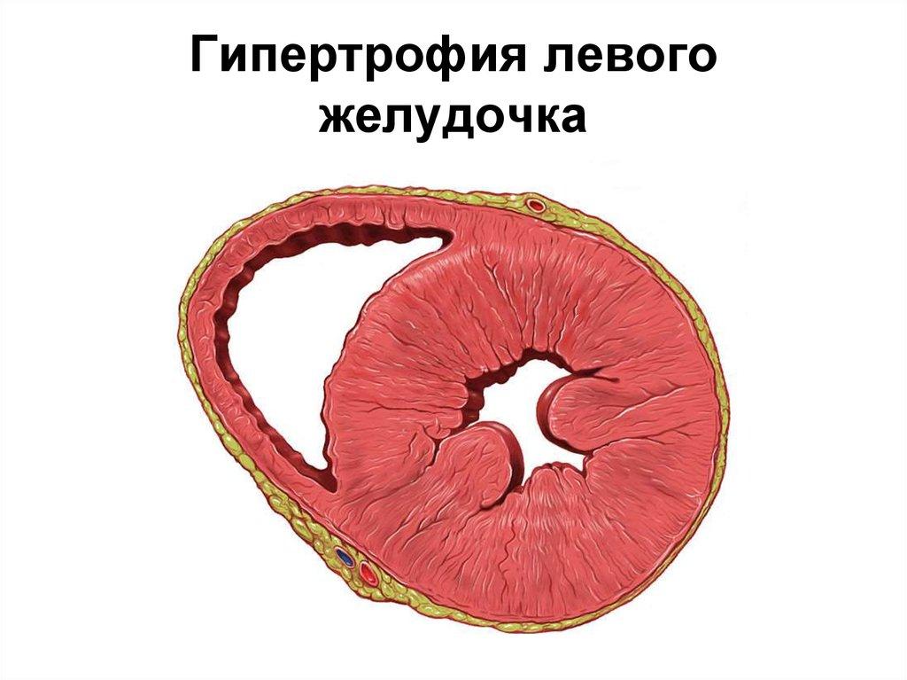 причина низкого холестерина в крови у мужчин