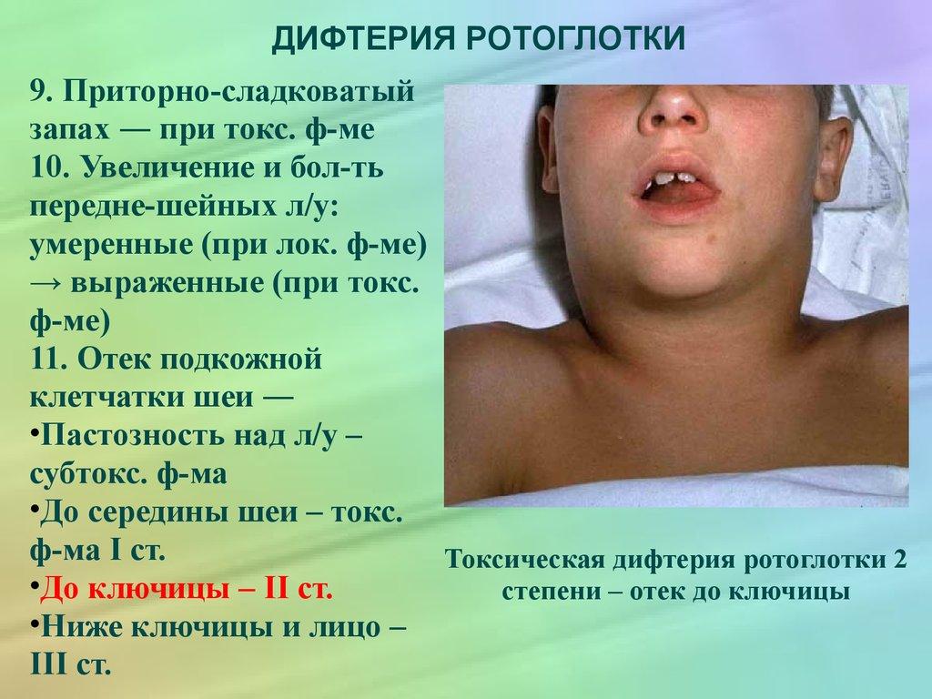 Как проявляется корь у взрослых симптомы