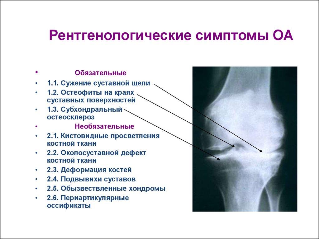 субхондральный склероз суставной впадины начальный артроз