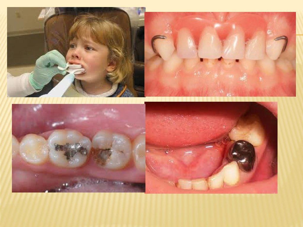 Мостовидный протез на молочные зубы