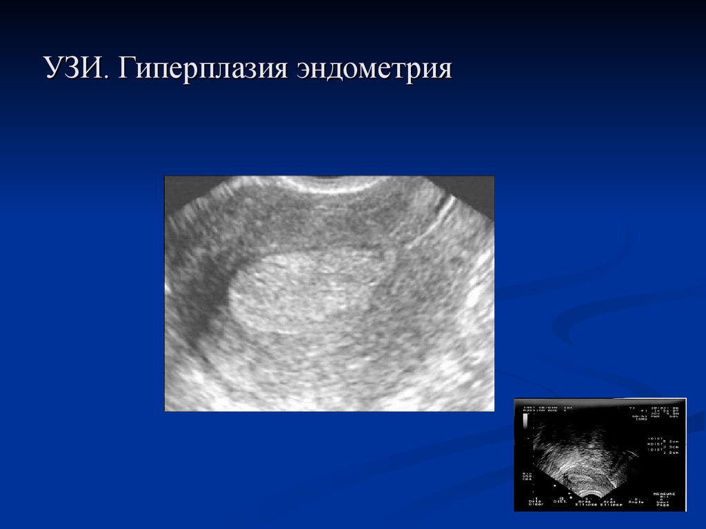 Гиперпластические процессы эндометрия. Рак эндометрия - online presentation