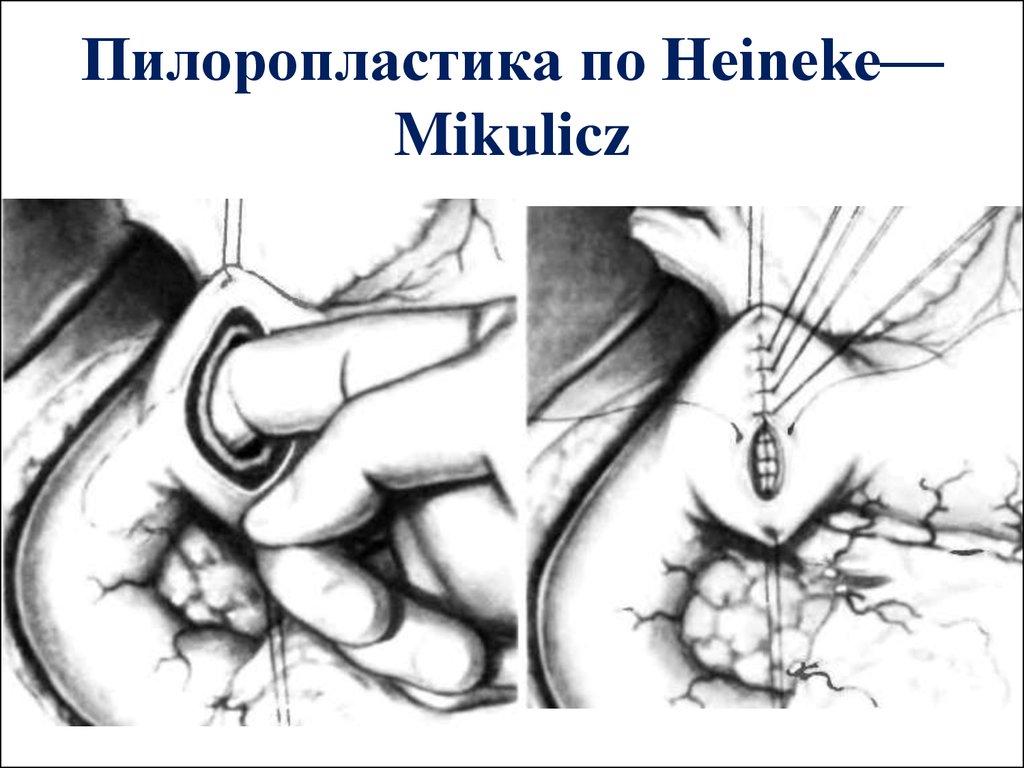 Mikulicz-linie