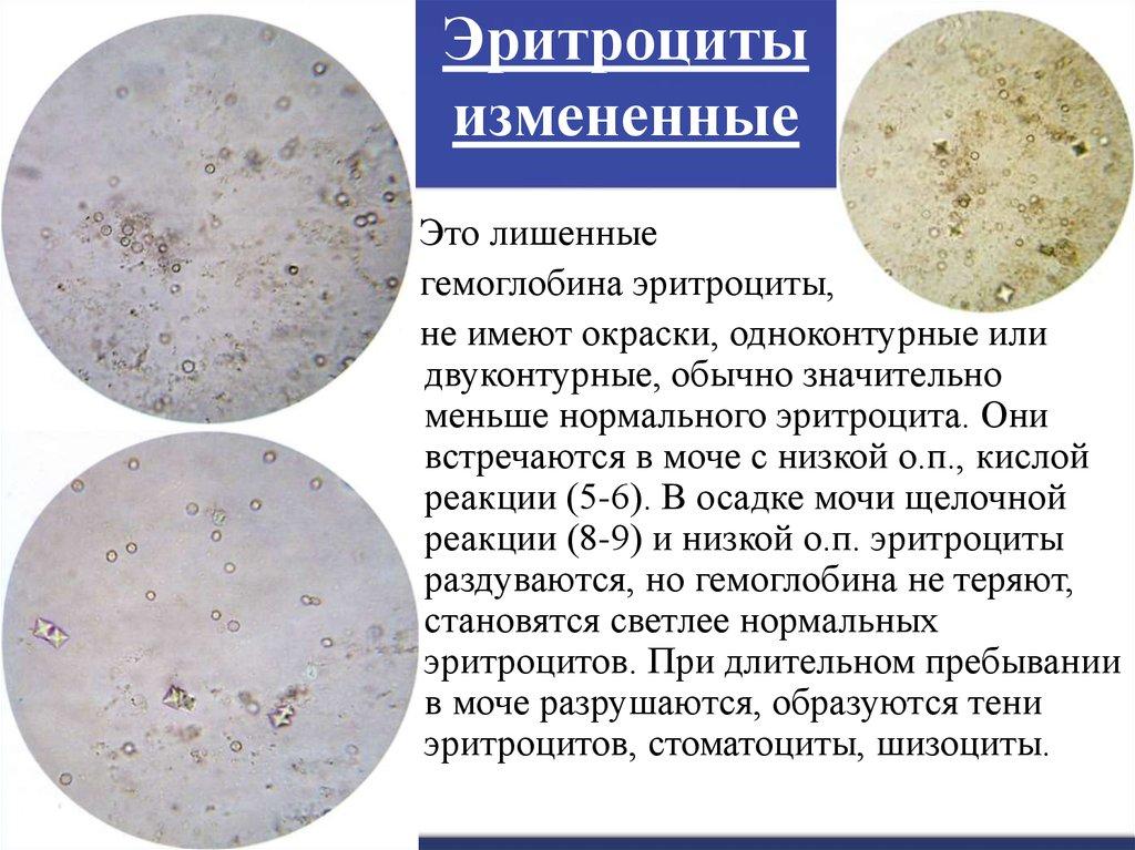 пиелонефрит измененные эритроциты