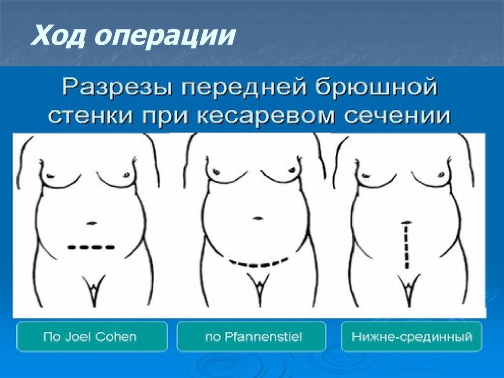Боль при сокращении матки после кесарева сечения Самые интересные факты обо всем Tattoodima.ru