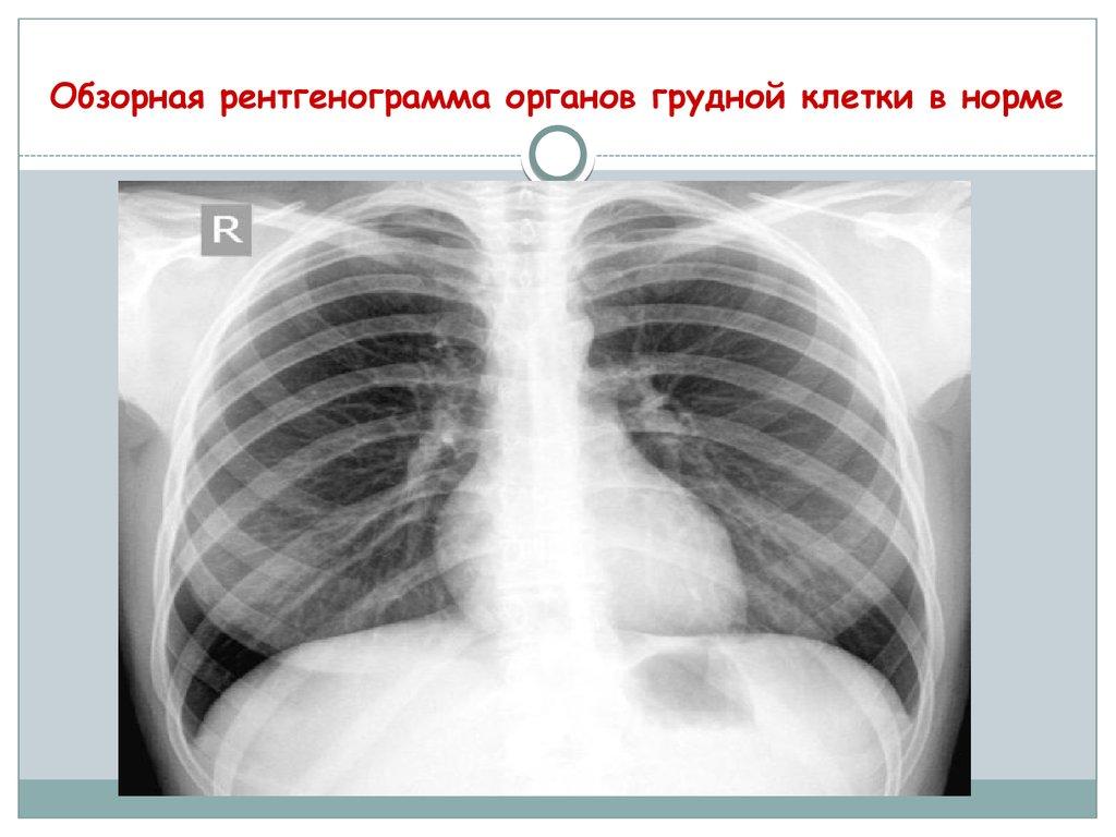 рентгенография органов грудной клетки в выходной в новосибирске такое белье