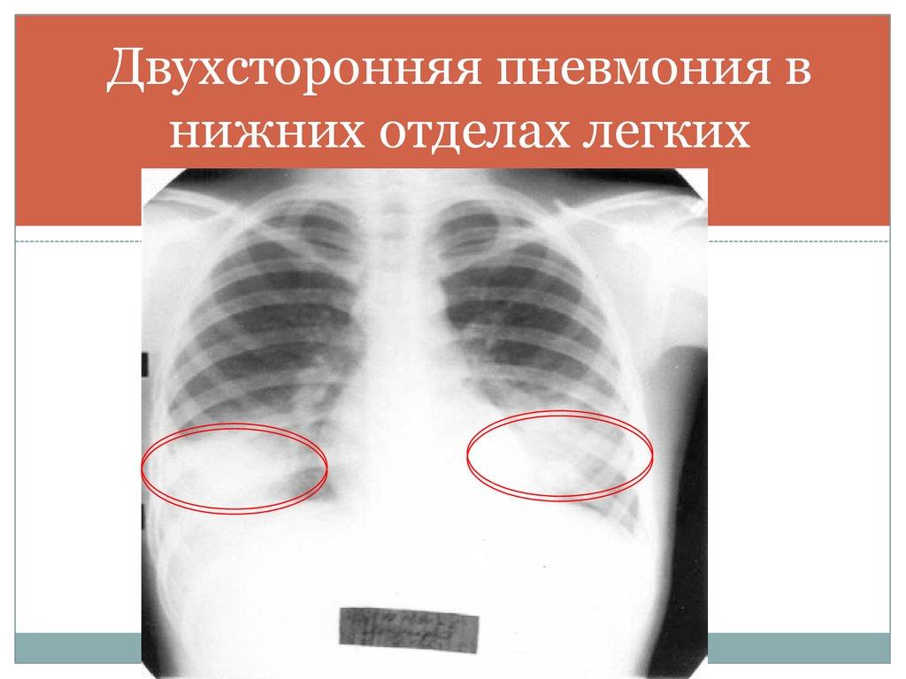 Усилен легочный рисунок в нижних отделах легких