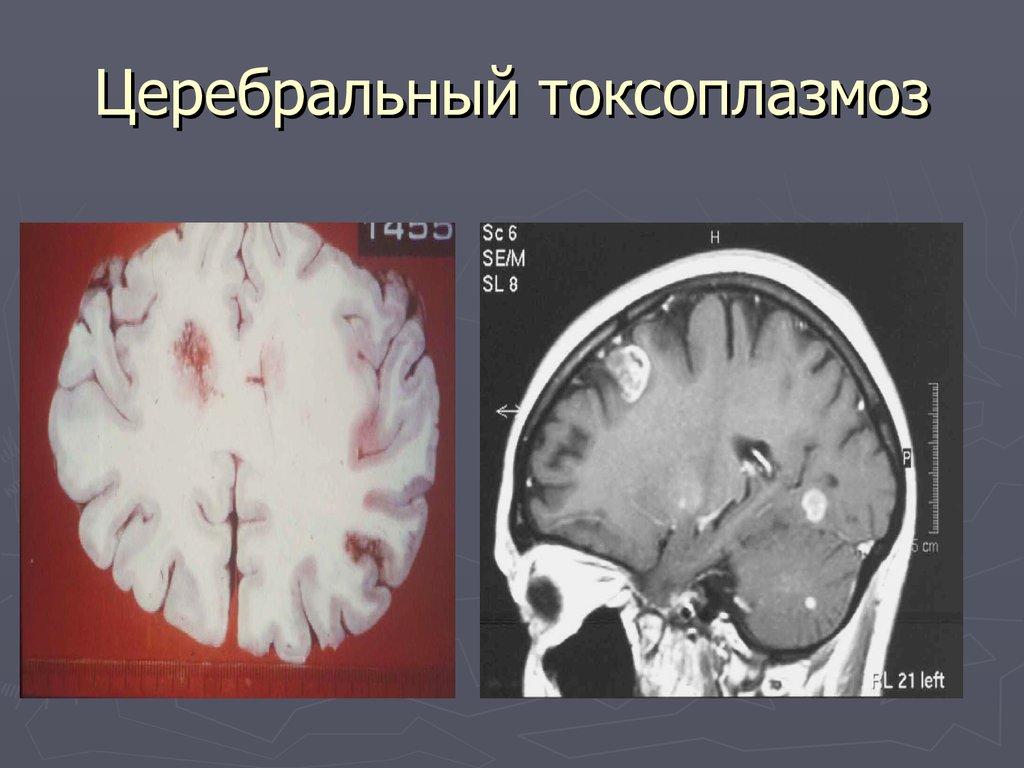 Toxoplasmosis gondii brain