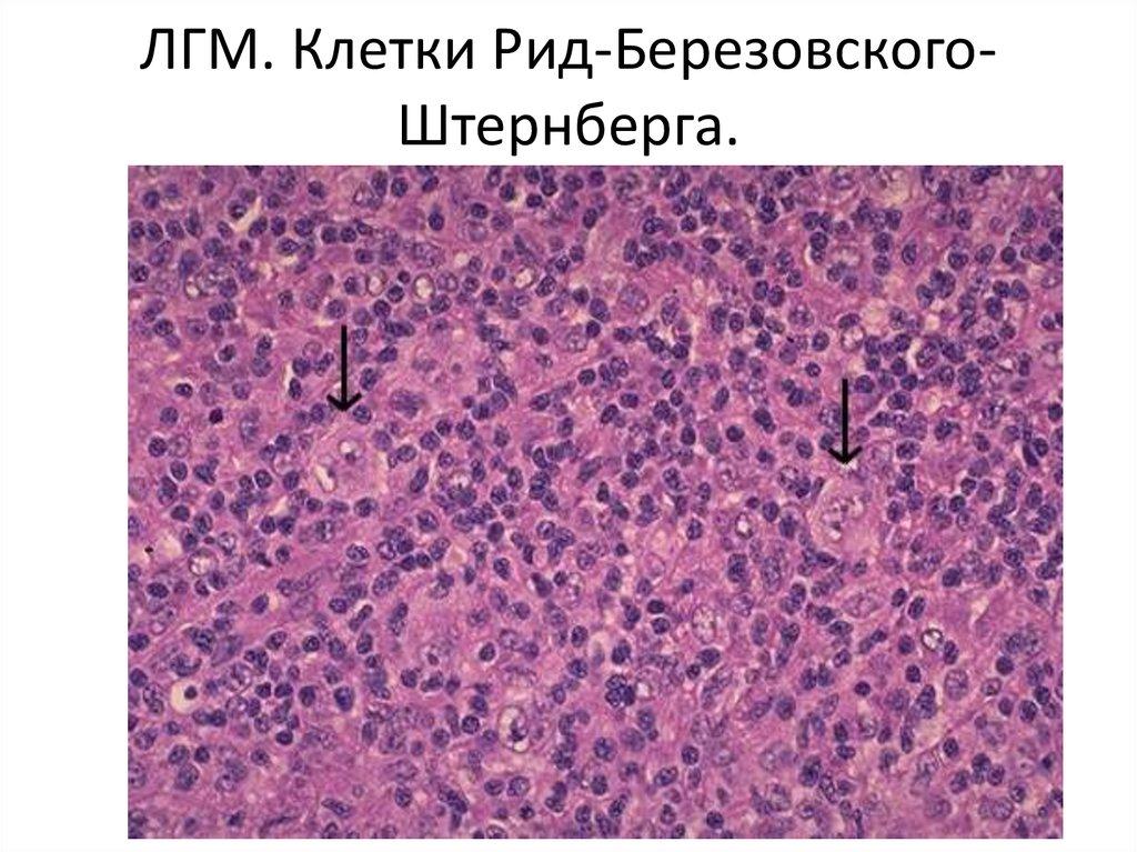 Клетка Рид-Штернберга