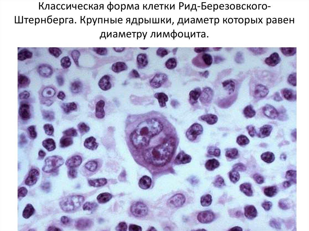 Клетка-Киллер Естественная