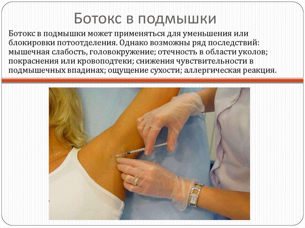 Процедура ботокс подмышки