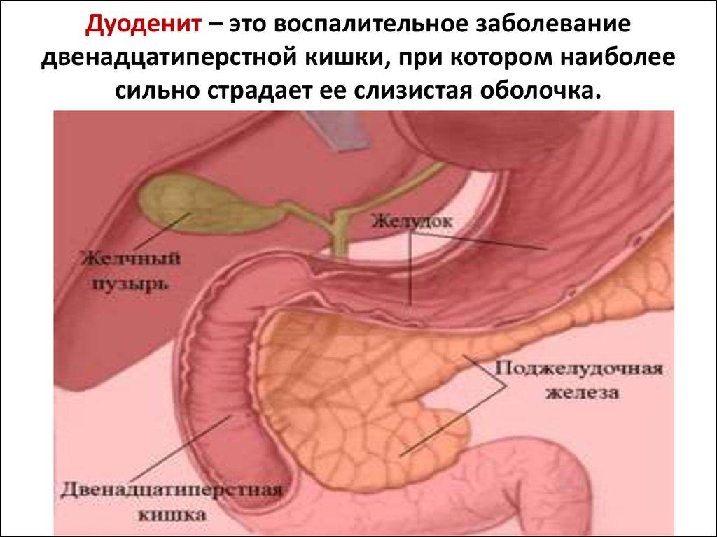Гастродуоденит кишечника