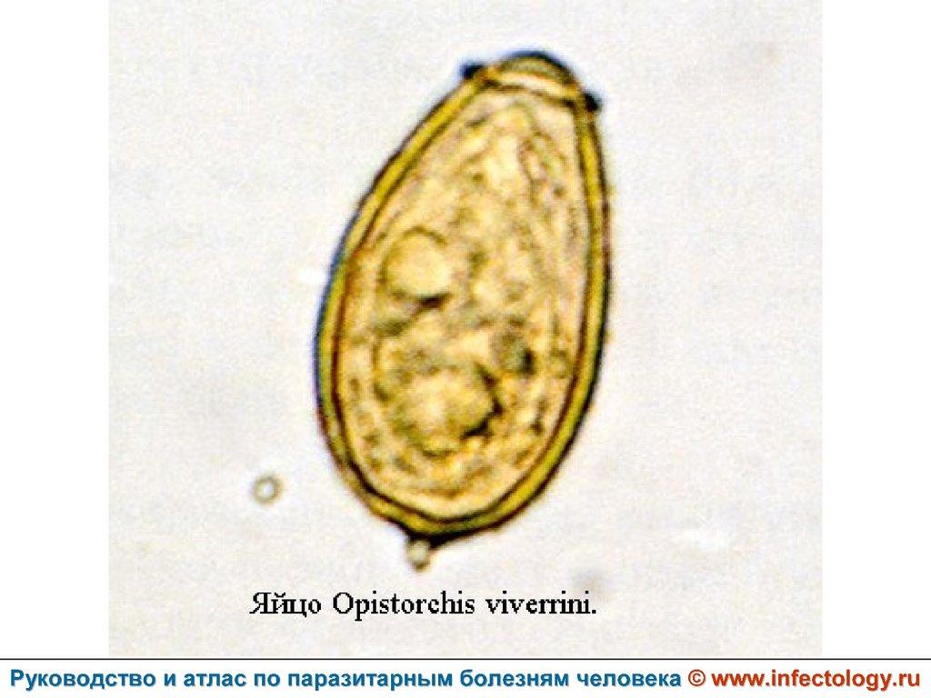 паразиты описторхоз лечение