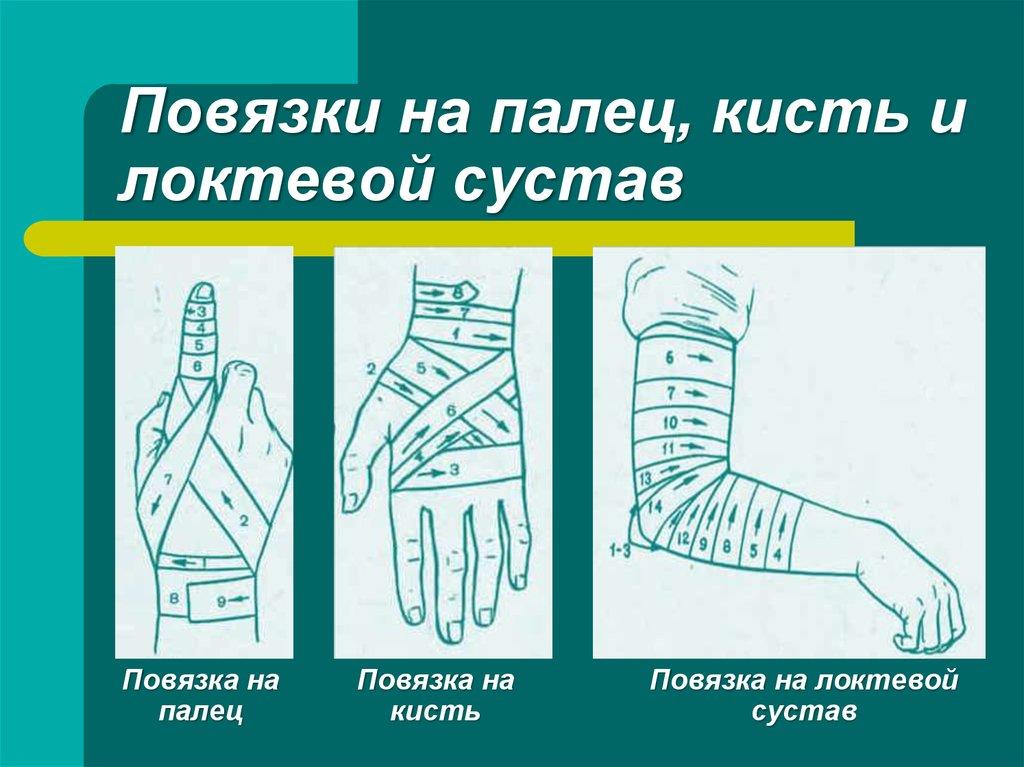 Как сделать повязку на руку ребенку 203