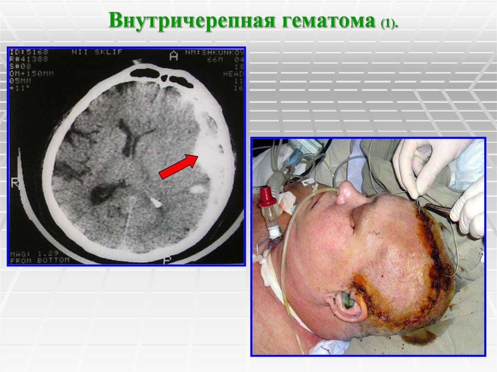 Кровоизлияние в мозг у беременных 23