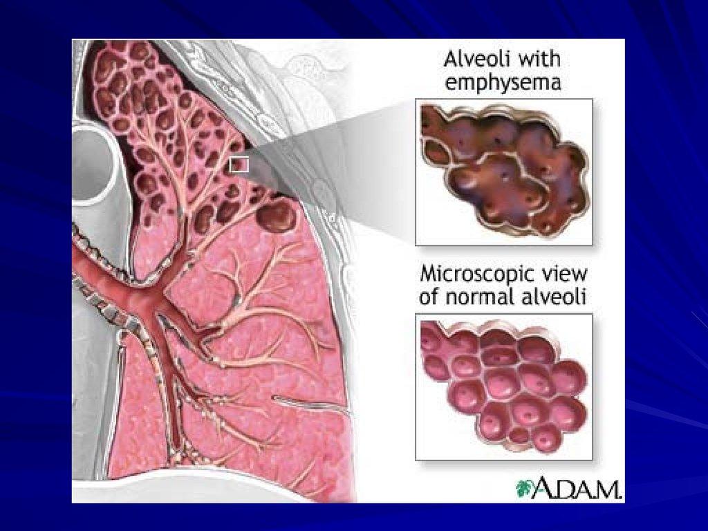 история болезни бронхиальная астма у взрослого