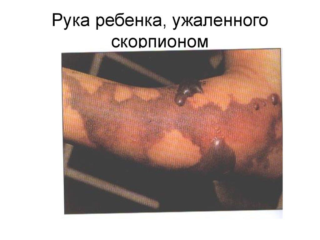 методы борьбы паразитами человеке