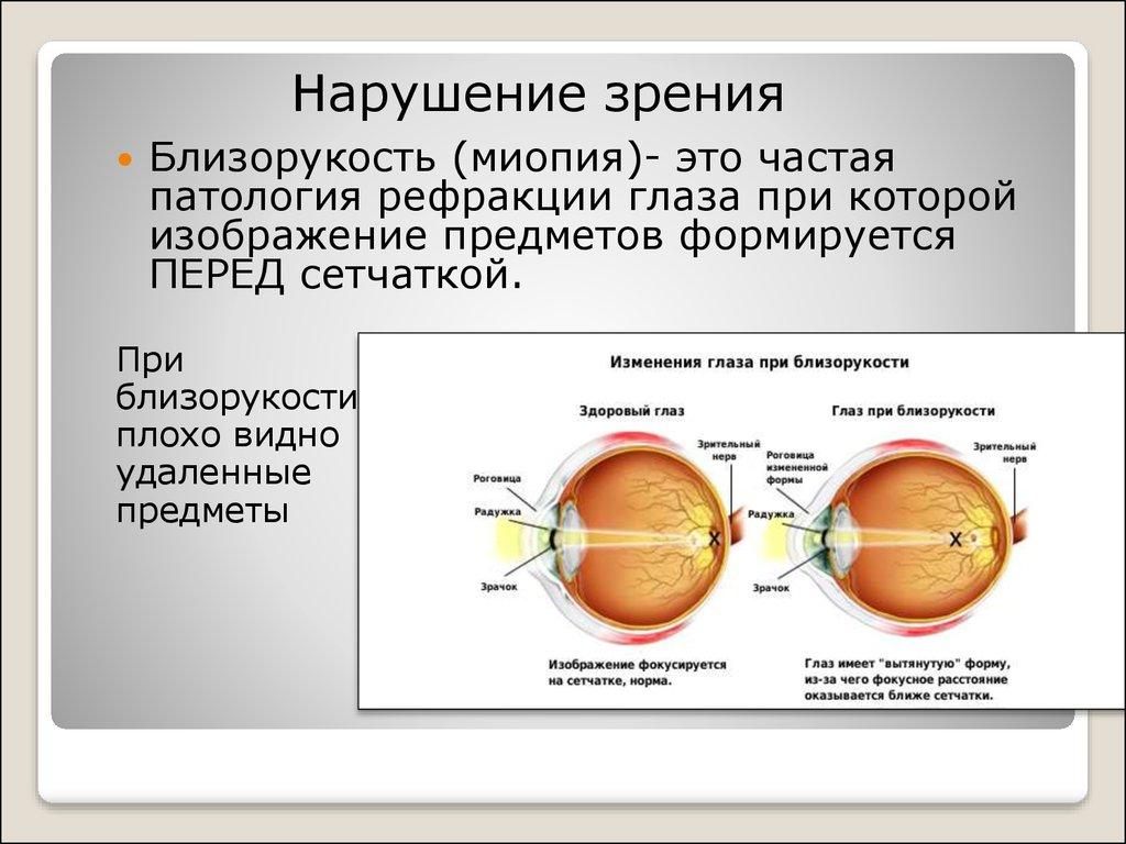Лечение близорукости лазерная коррекция зрения цена