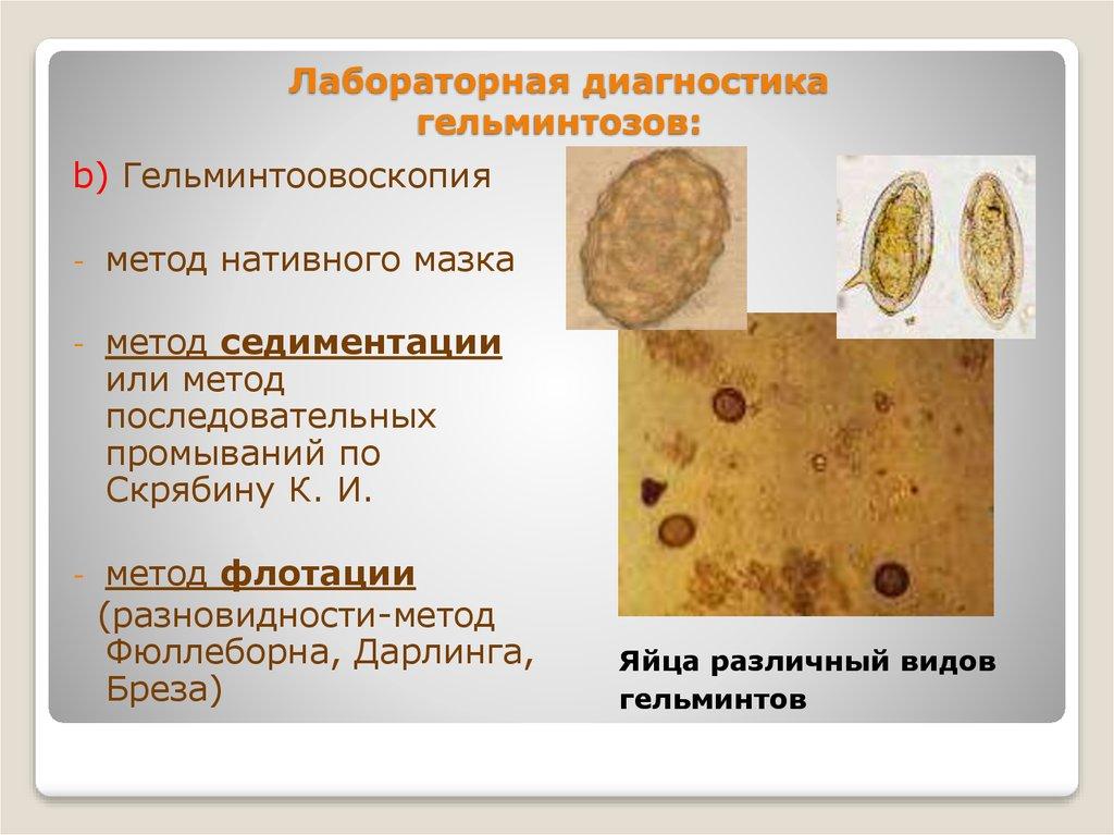 проявление паразитов в организме человека