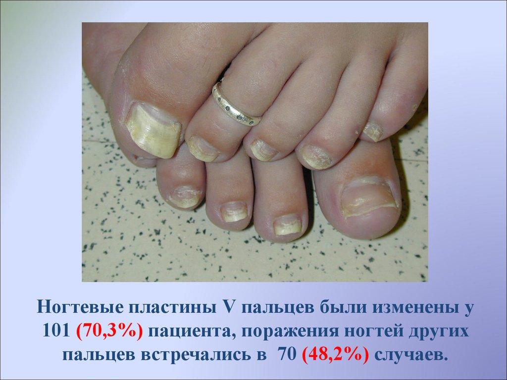 Что делать если ногти не растут в домашних условиях 66
