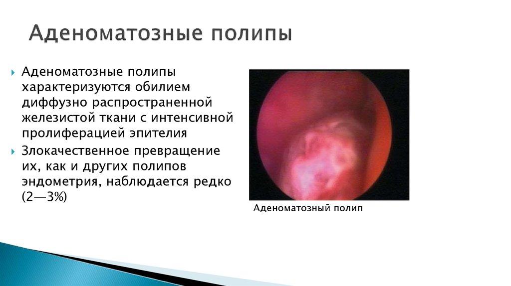 Полип эндометрия - online presentation