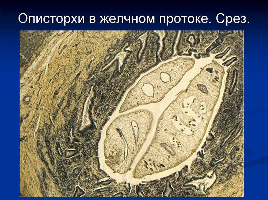 паразиты сосальщики лечение