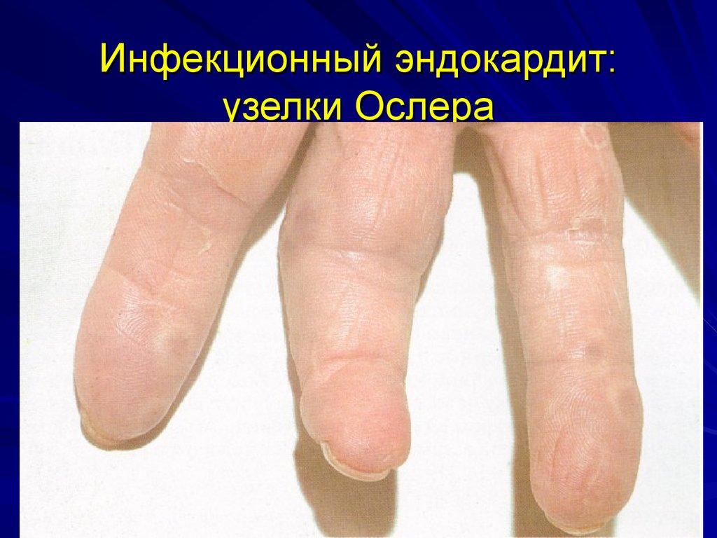 инфекционный пиелонефрит лечение
