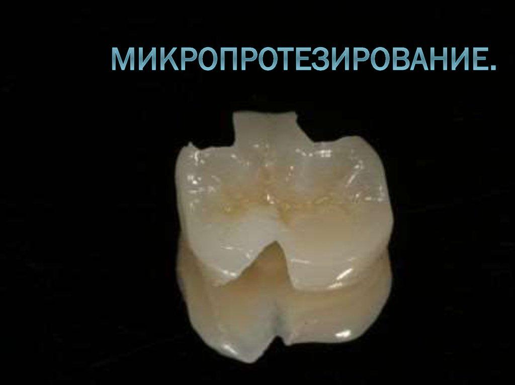 виниры на зубы кемерово что это