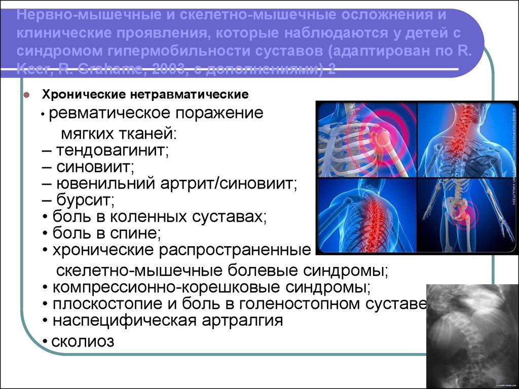 синдром гипермобильности суставов у детей лечение