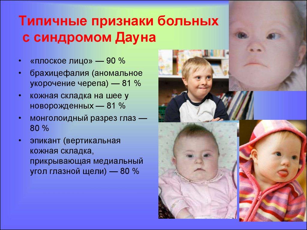 Как выглядят новорожденные с синдромом дауна