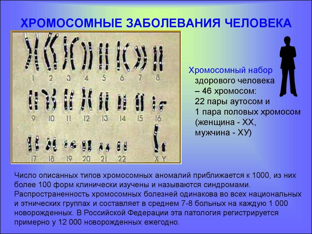 Хромосомные болезни связанные с нарушением в половых хромосом