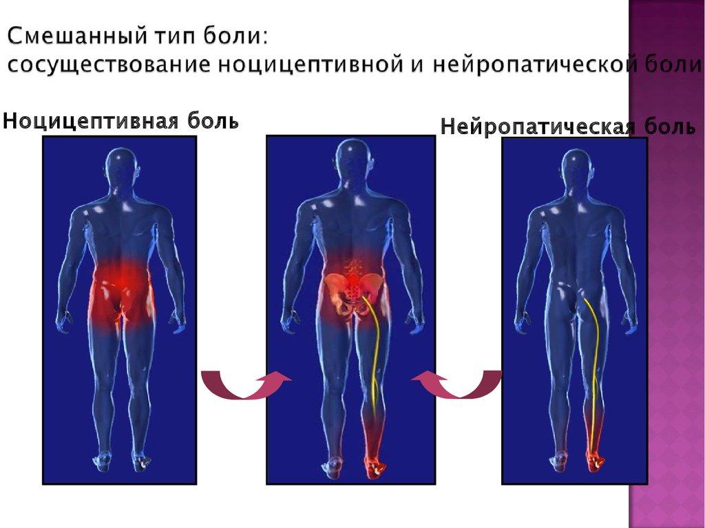 Бубновский гимнастика при грыже шейного отдела позвоночника