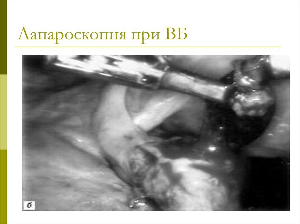 Лечение варикозного расширения вен на ногах лазером